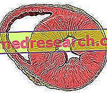 hipertenzija hipertrofija gydymas