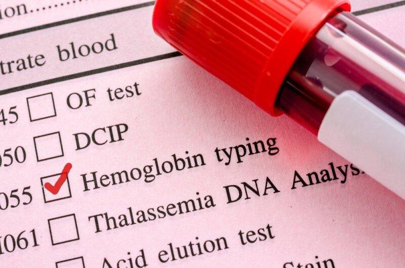 Hemoglobinas kraujyje