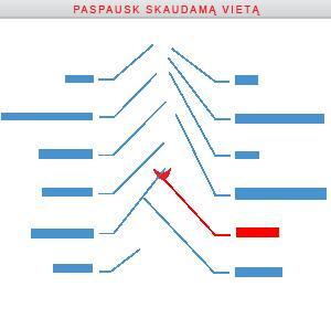 kataraktos pašalinimas dėl hipertenzijos