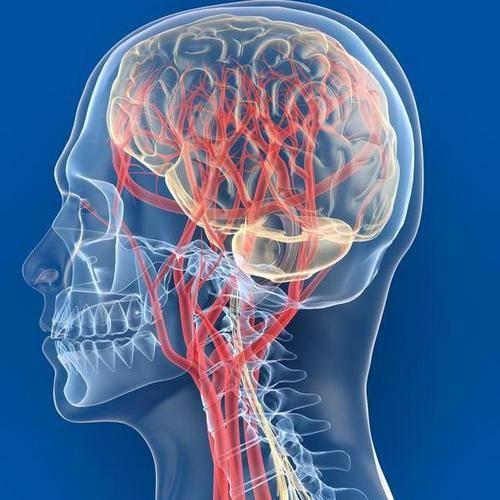 smegenų sukrėtimas ir hipertenzija)