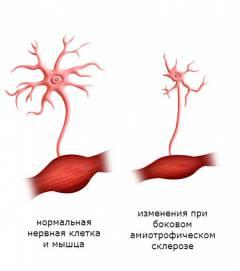 neuroksas ir hipertenzija