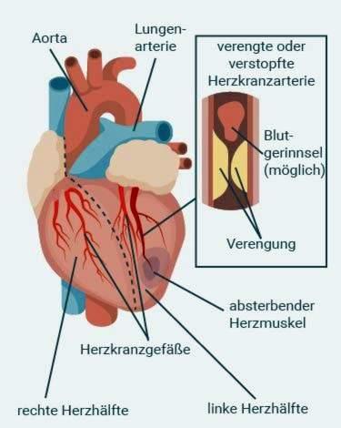 mankšta širdies sveikatos diagramai