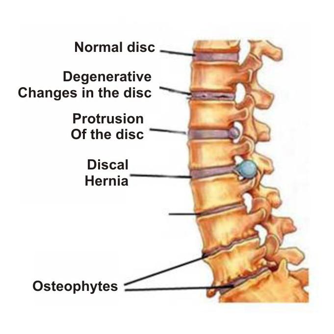 osteochondrozė ir hipertenzijos ryšys