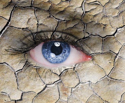 Kokias ligas išduoda sausos ir raudonos akys: akių lašai nepadės
