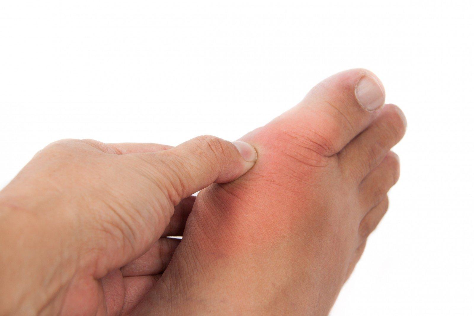 Podagros ir podagrinio artrito rizikos mažinimas