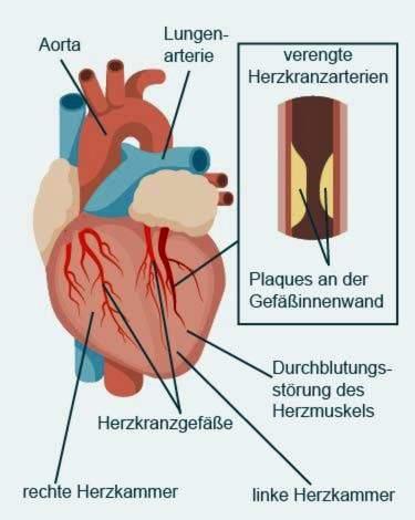krūtinės anginos ir hipertenzijos pratimai