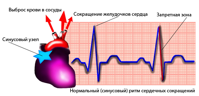 bradikardijos hipertenzija)