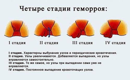 diosminas ir hipertenzija