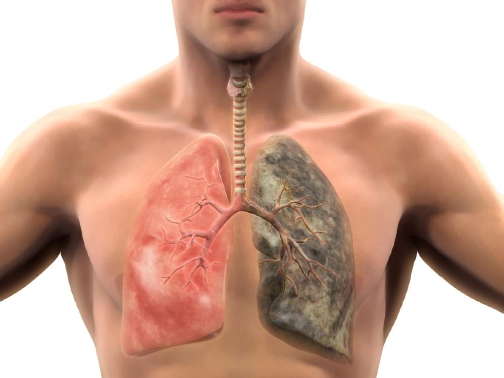 hipertenzija ir bronchitas