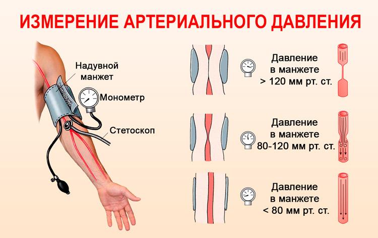 Hipertenzinė krizė: klasifikacija ir požymiai - Migrena -