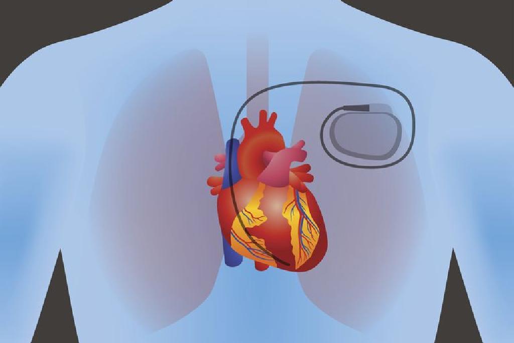 5 maisto produktai širdies sveikatai