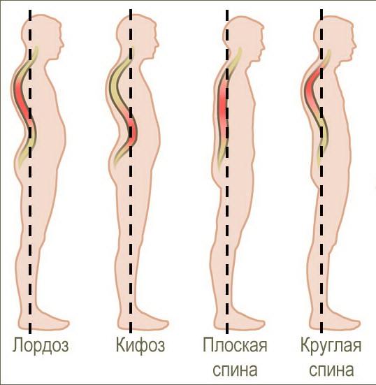 terapinių pratimų nuo hipertenzijos rinkinys