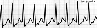 tachikardija galvos svaigimas hipertenzija