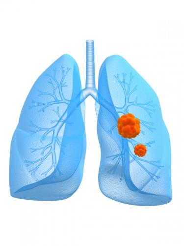 Apgaulingas bronchitas: gydymo klaidos - DELFI Gyvenimas