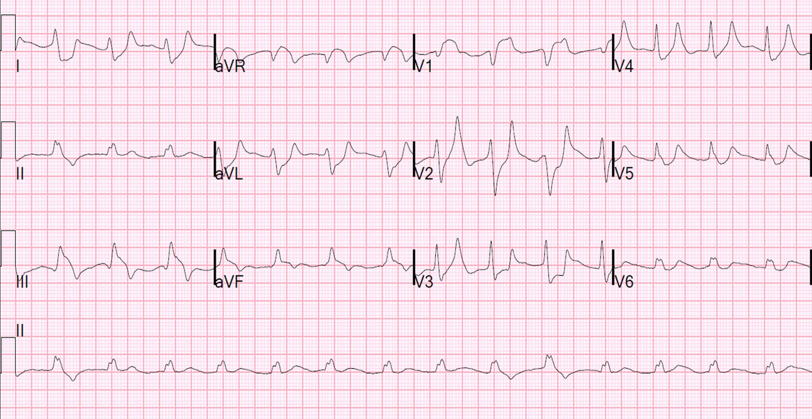 EKG hipertenzijai 1 laipsnis