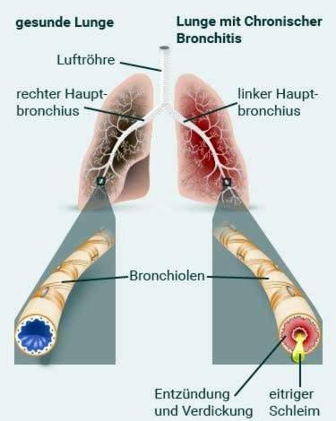 Lėtinė obstrukcinė plaučių liga - Sveikas Žmogus