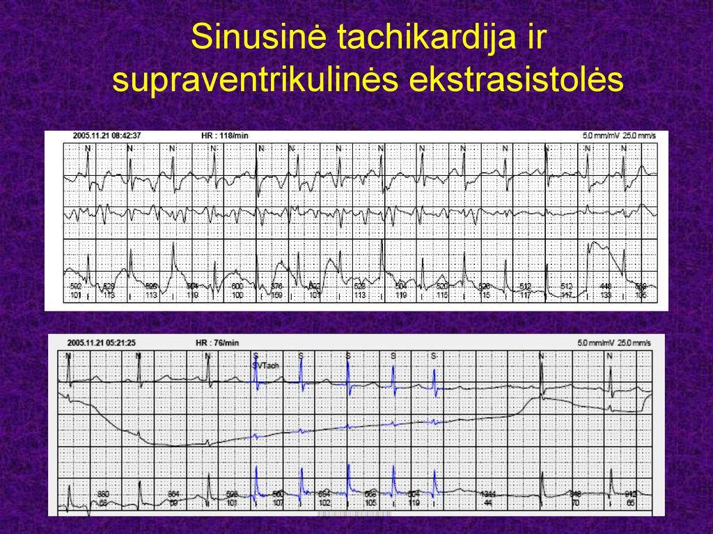 sinusinė tachikardija su hipertenzija)