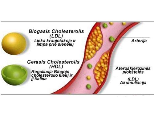 hipertenzija ir cholesterolio lygis cikorija sergant hipertenzija