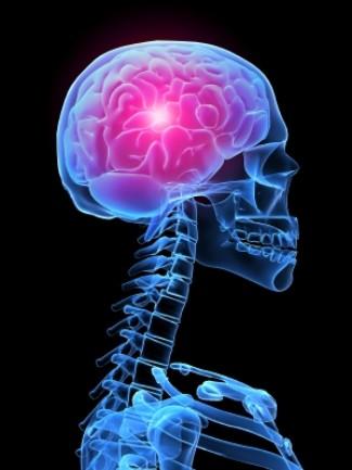 Migrena gali prišaukti insultą | eagles.lt