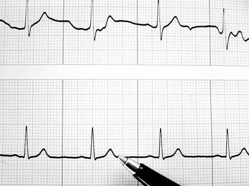 Hipertenzijos gydymas - Pulsas