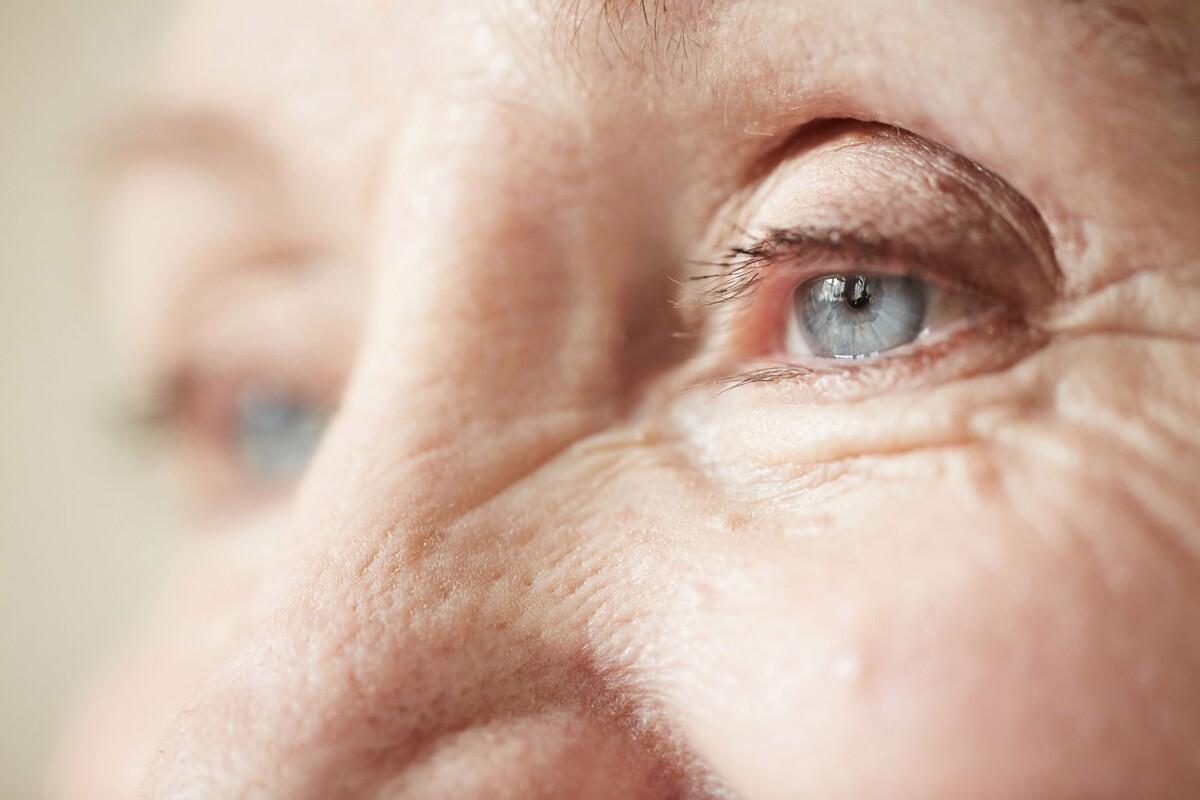 Hipertenzinė retinopatija