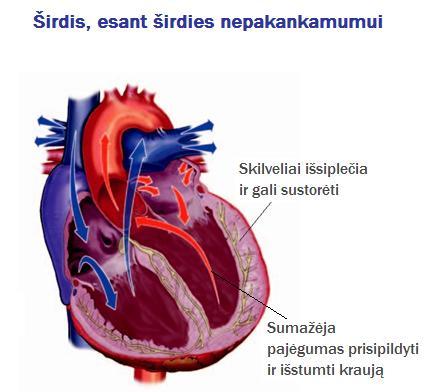 pasekmės sveikatai išsiplėtusi širdis