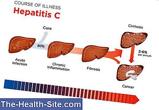 lėtinis hepatitas ir hipertenzija)