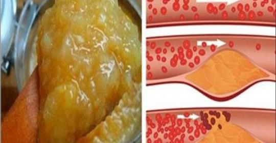 hipertenzijos iš sėklų receptas)