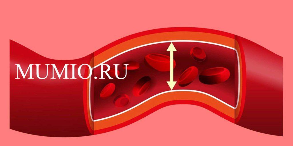 ar galima vartoti aminofiliną nuo hipertenzijos