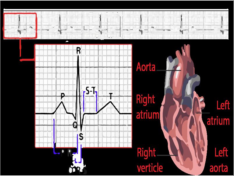 hipertenzijos korekcija lazeriu vaistas nuo hipertenzijos ir širdies bei kraujagyslių ligų