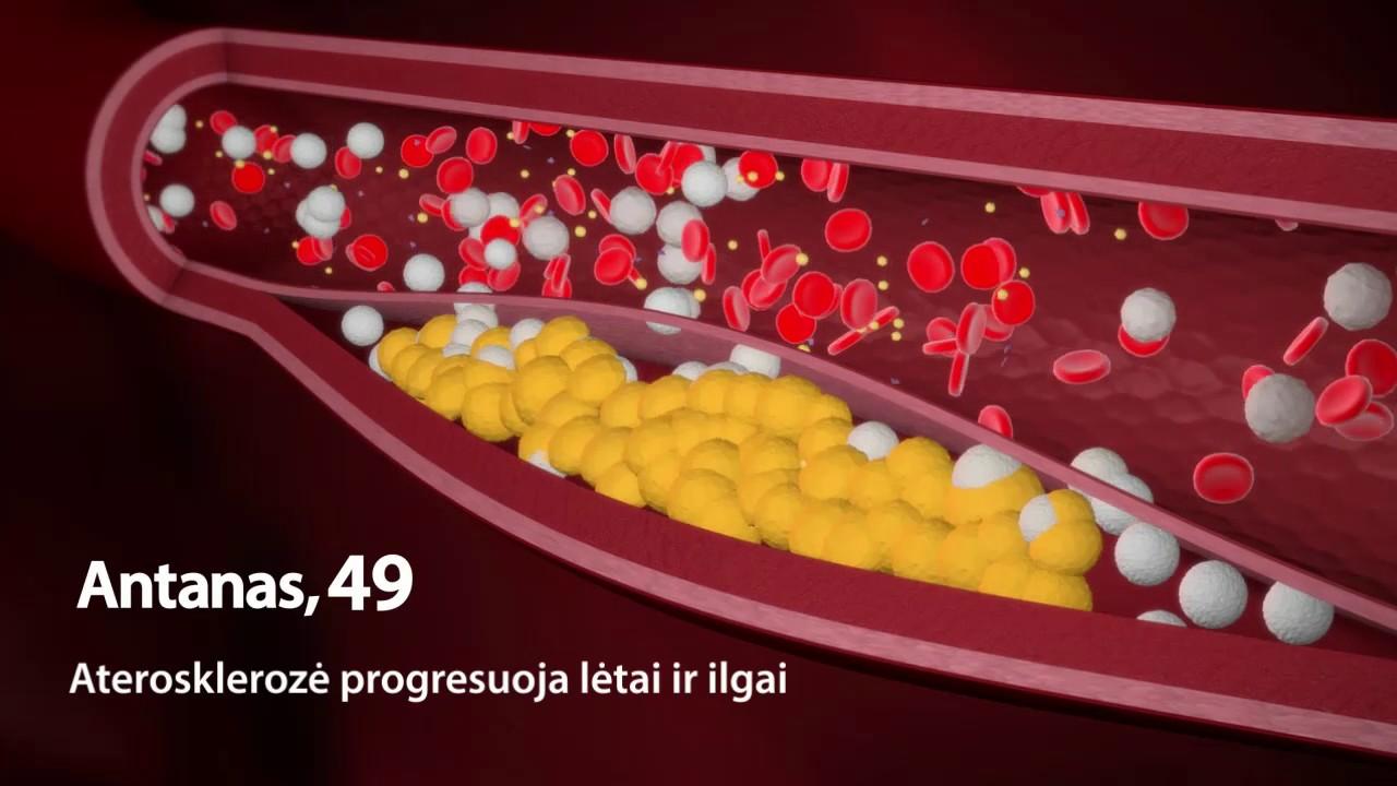 bėgimas su hipertenzija po 50 metų