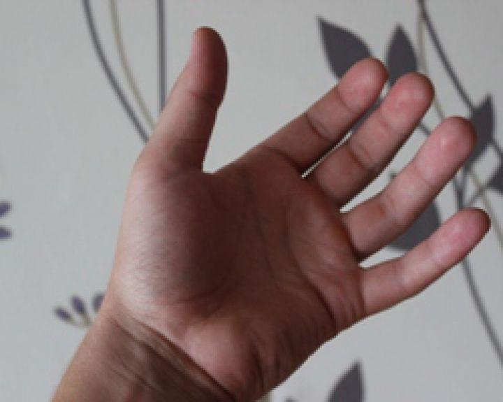 hipertenzija ir rankų tirpimas