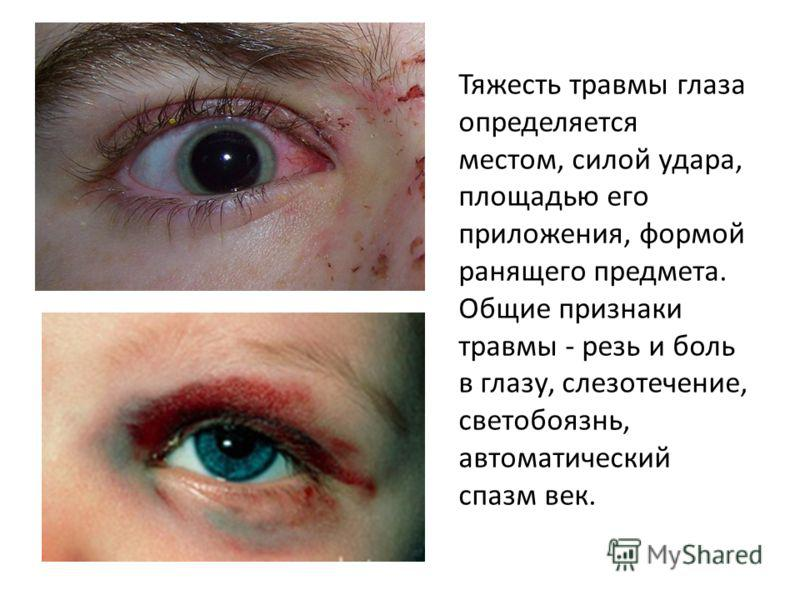 rūkas akyse su hipertenzija)