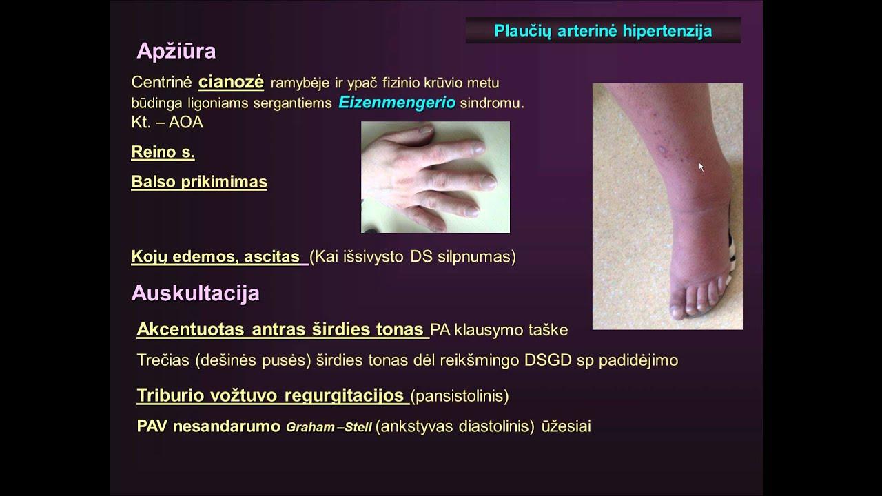 plaučių hipertenzija ir hipertenzija)