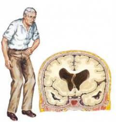 Kas yra slankstelių arterijų ekstravazinis suspaudimas? - Hipertenzija November