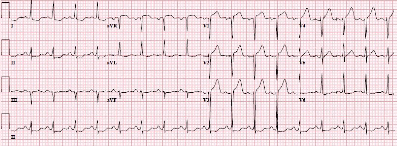 Elektrokardiografija
