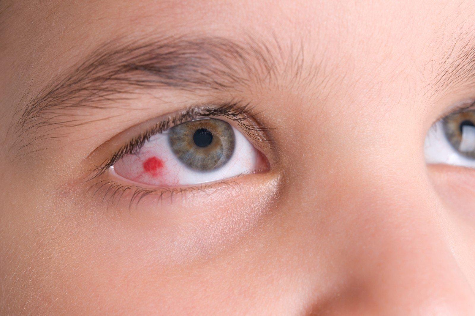 raudonų akių hipertenzija