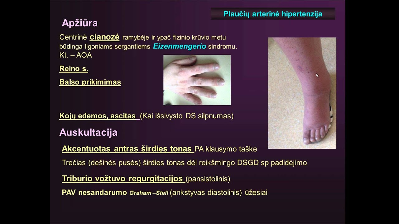 hipertenzija senyvo amžiaus hipertenzija)