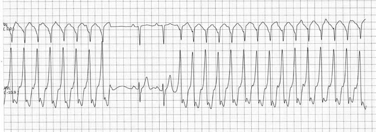 hipertenzija sinusinė tachikardija)
