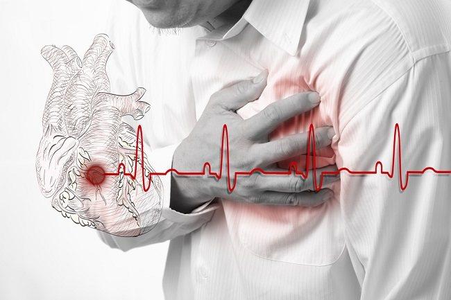 hipertenzija ar krūtinės angina)
