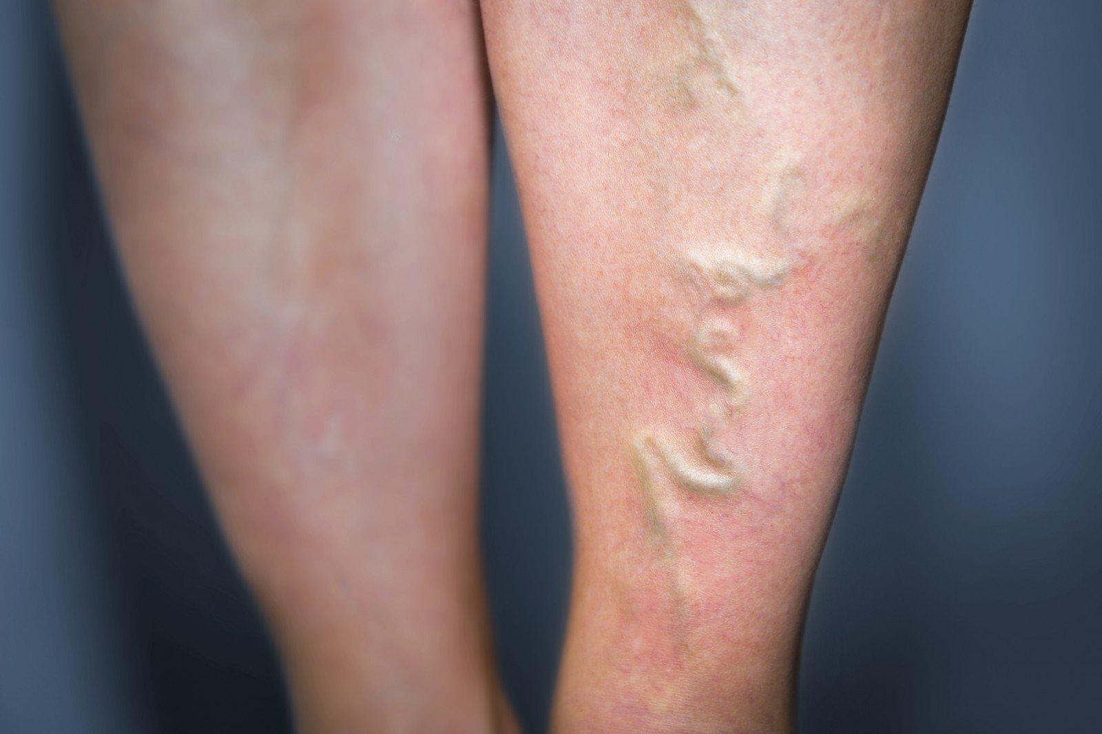Kojų venų varikozė: simptomai ir gydymas - Hipertenzija November