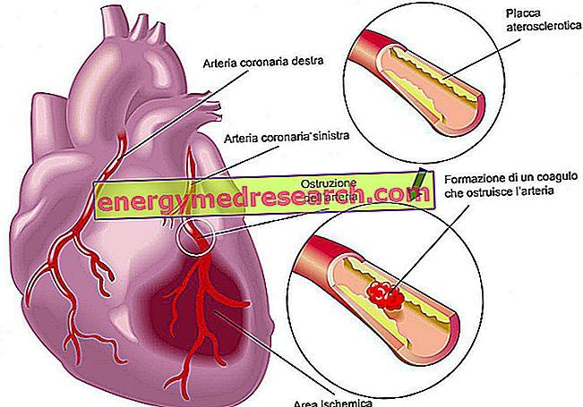 sveikatos širdies alimentai)