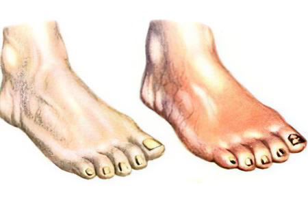 ar kojos gali išsipūsti nuo hipertenzijos