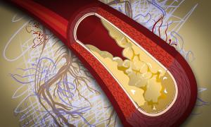širdies ir kraujagyslių rizikos įvertinimas sergant hipertenzija