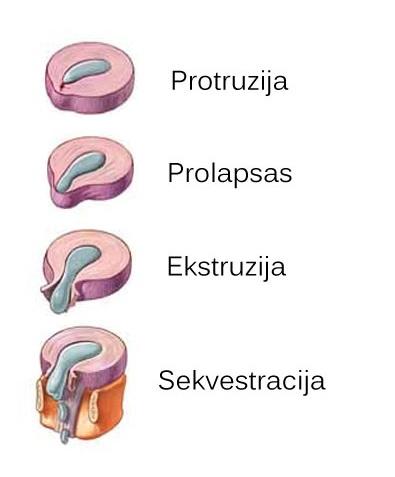 stuburo jungtis su hipertenzija)