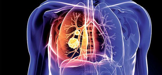 kvepiantis kvėpavimas gydo hipertenziją ir hipotenziją Jurijus vilūnas