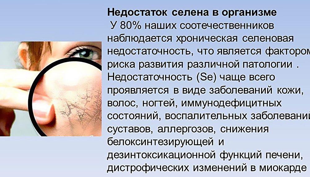 Smegenų kraujagyslių aneurizma