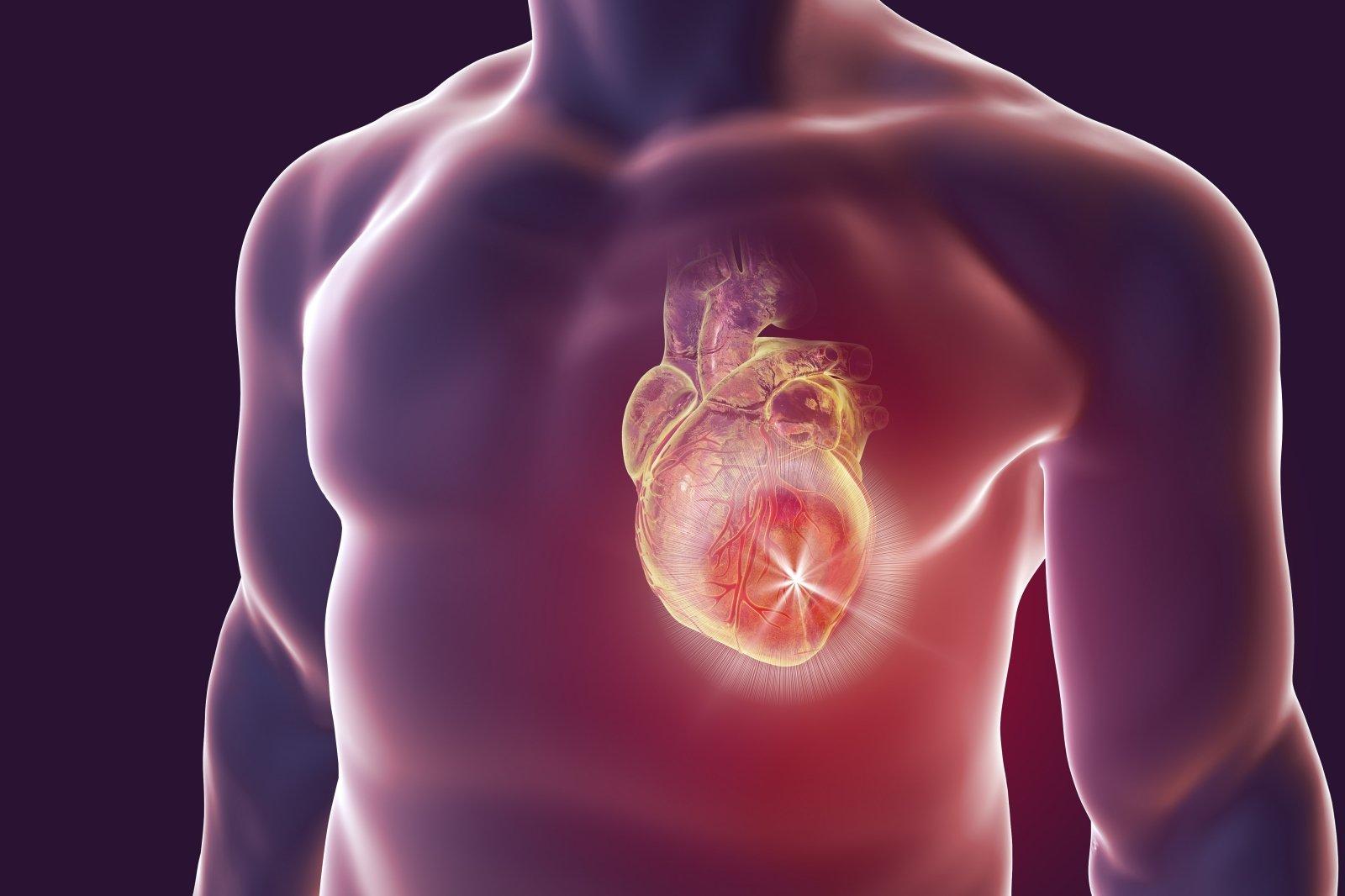 kaip išgydyti hipertenziją jauname amžiuje