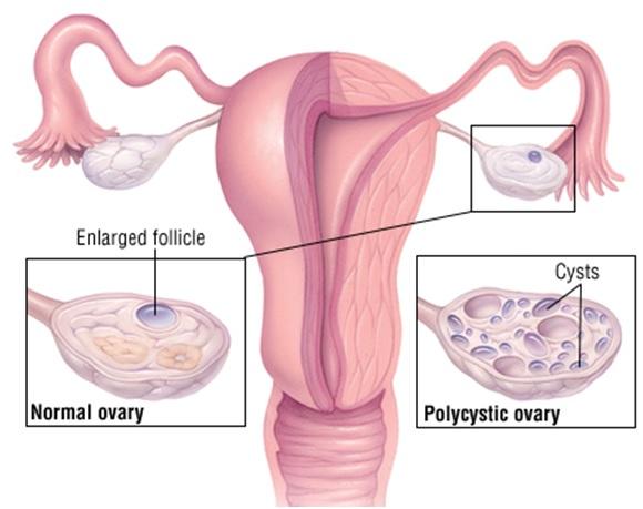 kiaušidžių hipertenzija