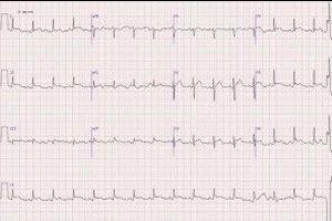 hipertenzija ir miokardo pokyčiai ant ekg)